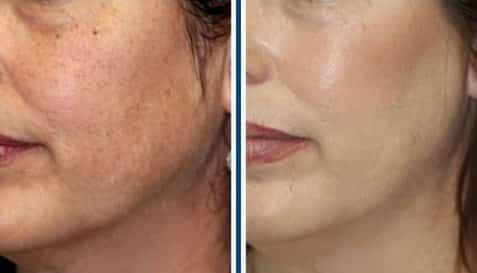 Осветление лица до и после