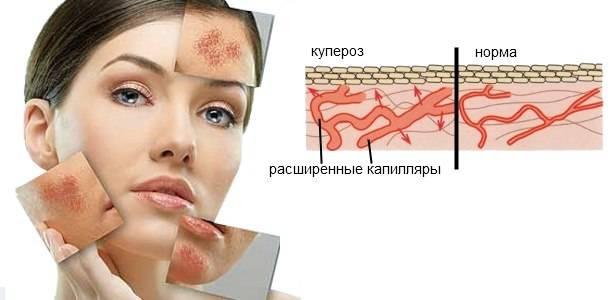 Как можно убрать на лице капилляры?
