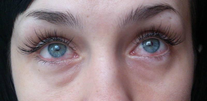 Возможна аллергическая реакция на препарат