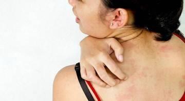 Таблетки от аллергии на лице