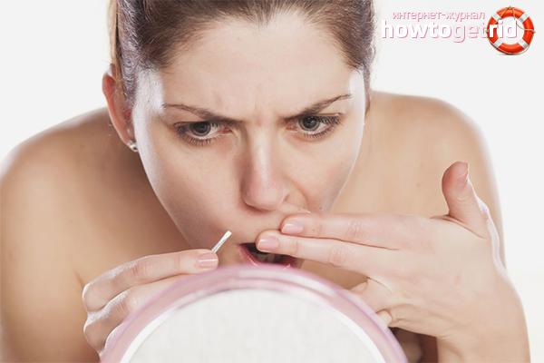 Как убрать усики над губой пинцетом