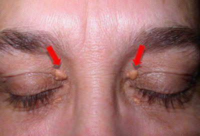 удаление доброкачественных новообразований кожи