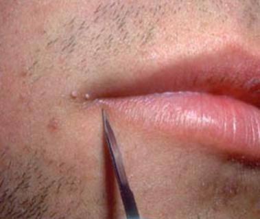 новообразования на коже лица