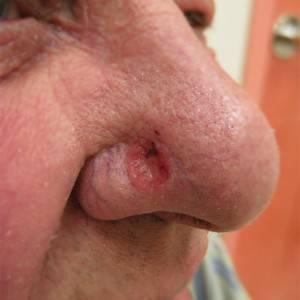 язва на носу