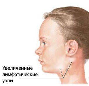Как выглядят увеличенные лимфатические узлы