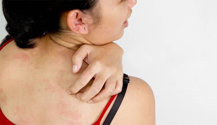 Подкожные прыщи на лице и подбородке как шишки: как избавиться