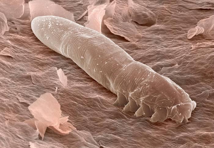 Кожный паразит: клещ демодекс