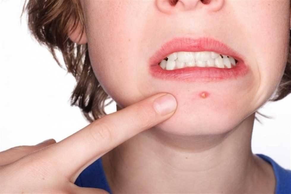 Как лечить красные прыщи на лице