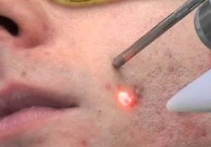 Лечение красных угрей лазером