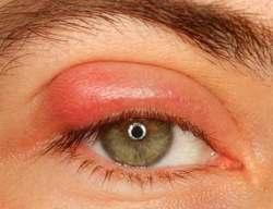 Мазь глазная от аллергии