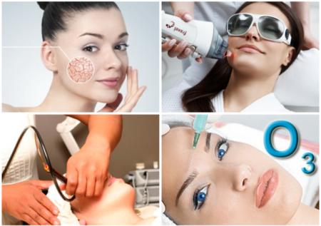 Косметологические процедуры от красных точек на лице