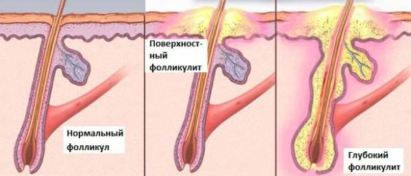 Стафилококковое воспаление фолликула