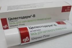 """Препарат """"Целестодерм"""" для глаз при аллергии"""