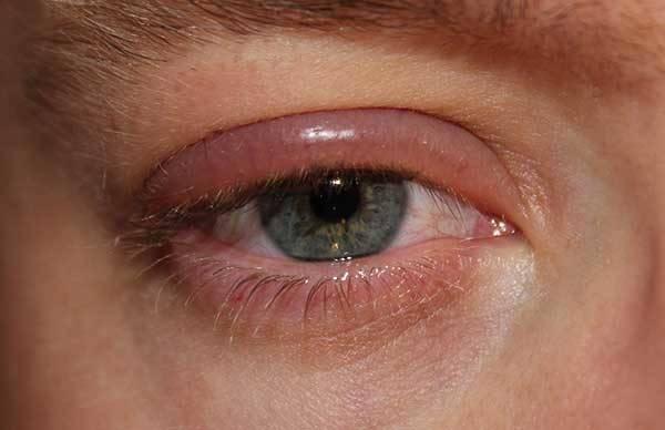 Глазная мазь от аллергии на веках