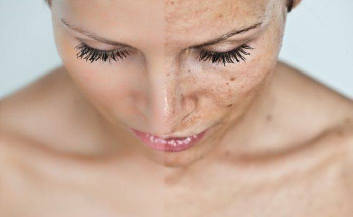 здоровая и воспаленная кожа