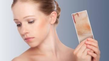 Как снять раздражение на коже лица