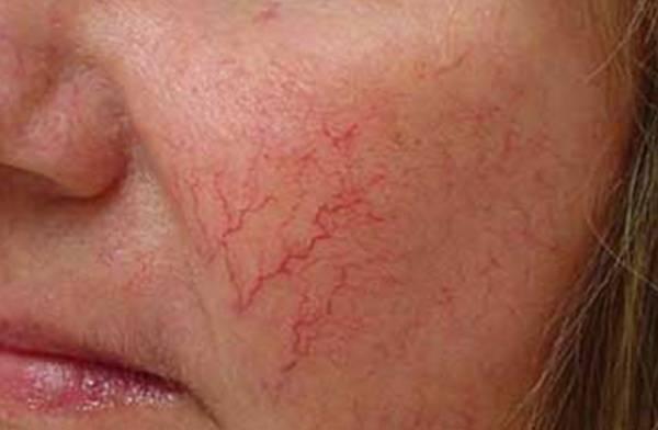 Как избавиться от капиллярной сетки на лице