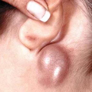 Шишка на лице возле уха что это