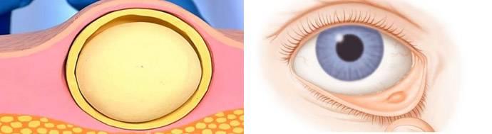 Жировики в области глаз