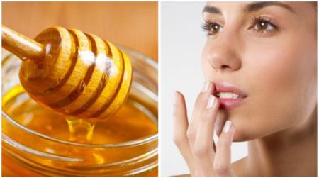 мед для губ после увеличения