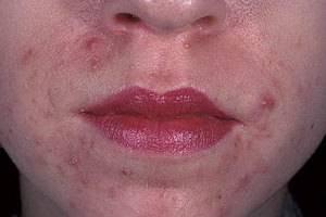 высыпания вокруг губ