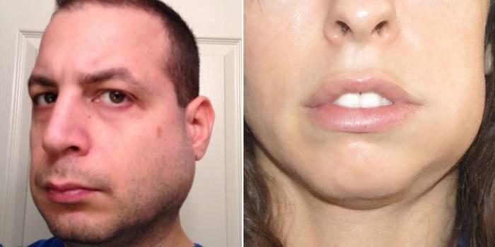 Уплотнение под кожей на лице