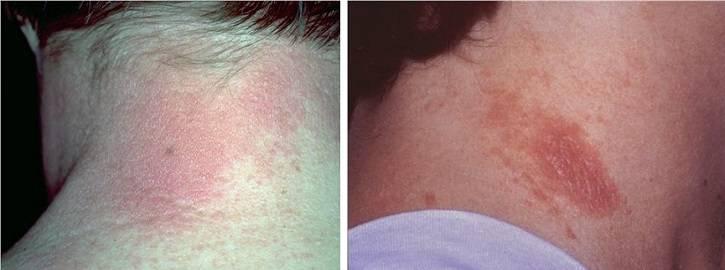Контактный аллергический дерматит на шее