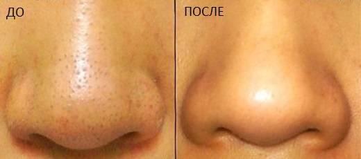 Забитые поры на носу