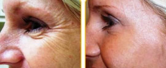 инъекции от морщин вокруг глаз