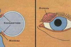 Схема ячменя