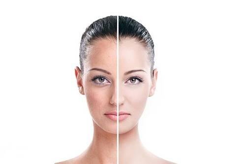 Крем против пигментации на лице