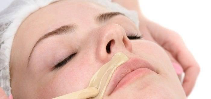 Как удалить усики над верхней губой навсегда