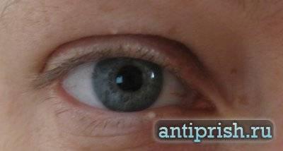Удаление жировиков на веках глаз