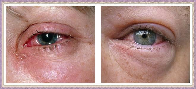Аллергия вокруг глаз причина