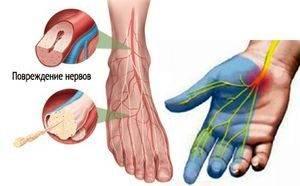 Полинейропатия и боли кожи