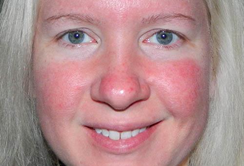 Красное лицо у женщины причины лечение